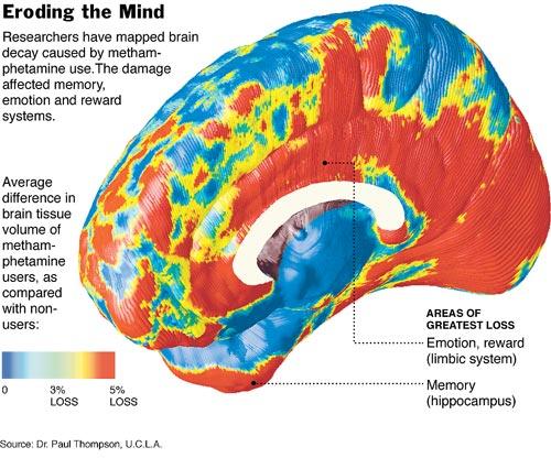 Image result for methamphetamine brain