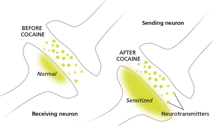 the-addict's-brain